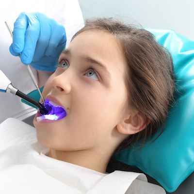 Little girl undergoing a sealant treatment as part of family dentistry in East Orlando