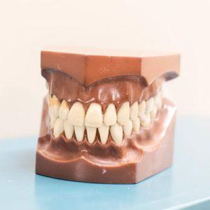 A Set of Fake Teeth