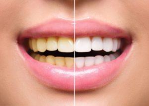 A smile with one side showing yellow teeth and the other white teeth after undergoing teeth whitening