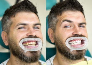 man smiling wearing a dental dam, waiting for a teeth whitening procedure