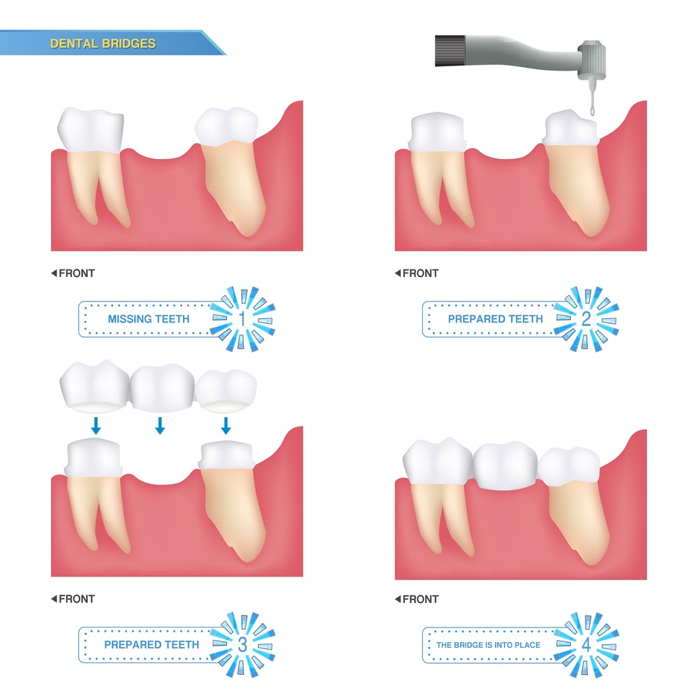 A graphic showing the 4 step process for a dental bridge