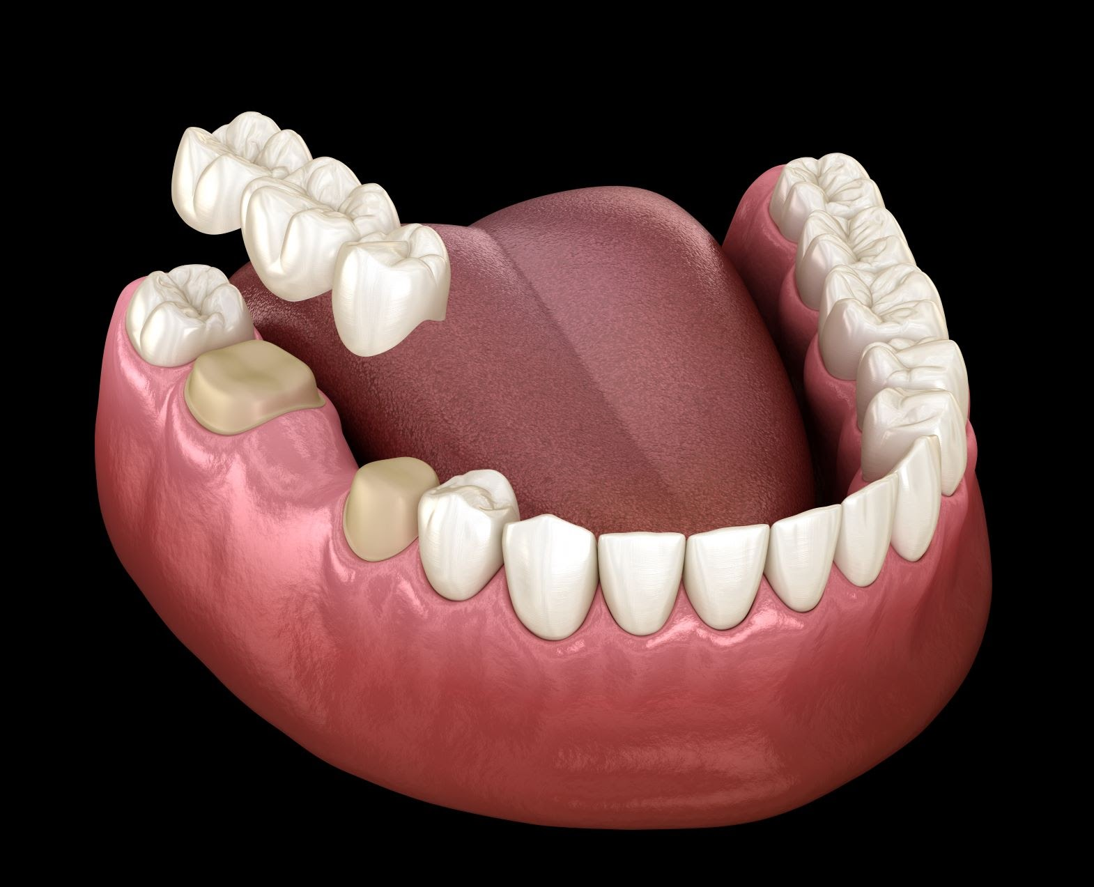 A visual example showing how a dental bridge fits into the mouth