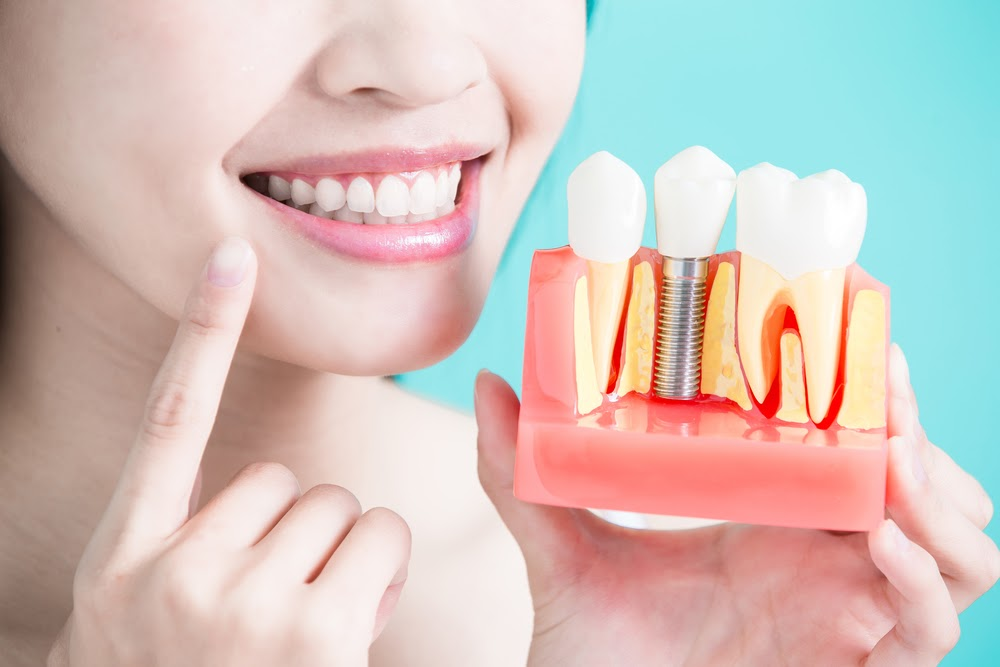 A visual example of how dental implants work