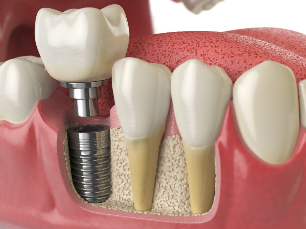 A dental implant and a crown