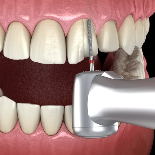 A graphic showing a drill grinding a tooth down for a Veneer placement