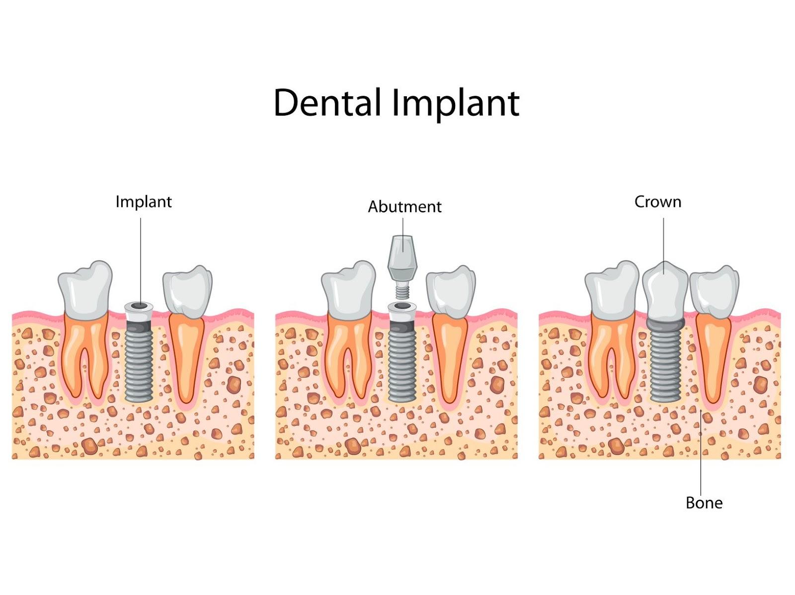 The dental implant procedure