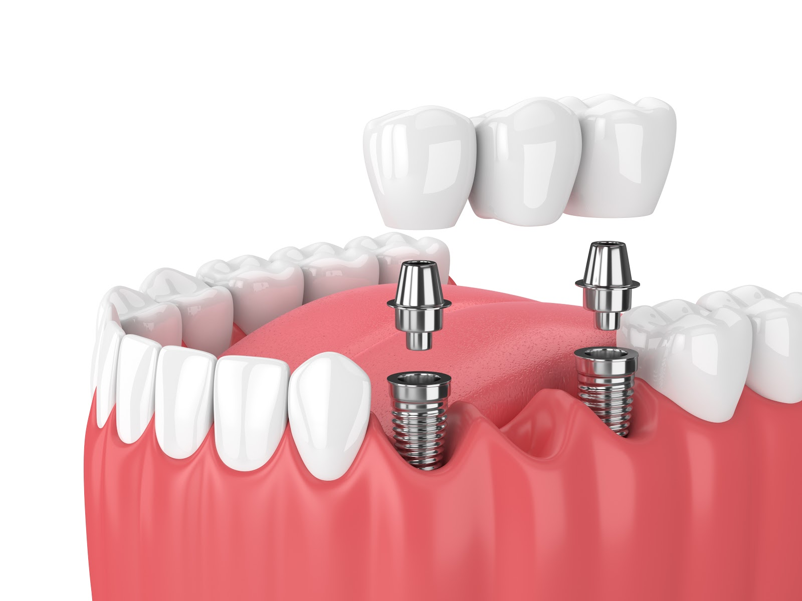 A dental implant supported bridge