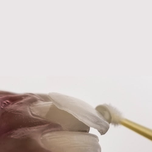 A Veneer being placed onto a tooth