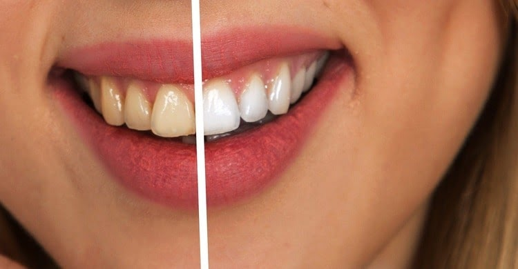 A visual example of porcelain veneers before and after