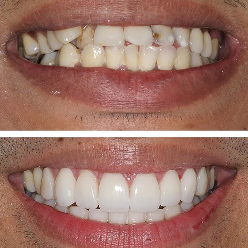 Before and after photo using Porcelain Veneers