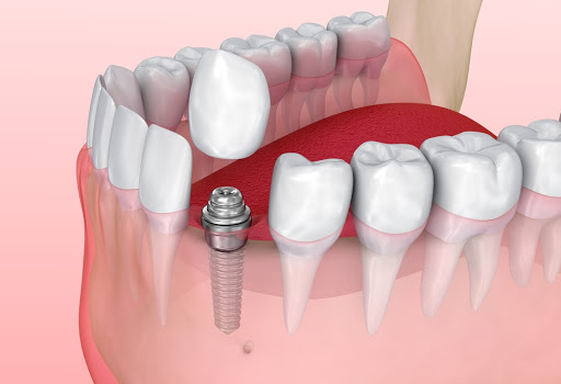 A dental implant showing how a crown is attached